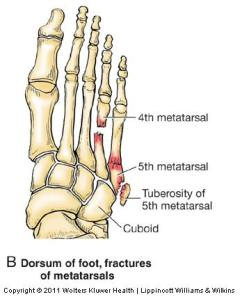 Many people suffer from repeated breaks especially in their fifth metatarsal, picture courtesy of http://classconnection.s3.amazonaws.com/
